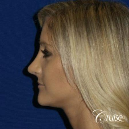 Best Rhinoplasty results Newport Beach CA -  After Image 4