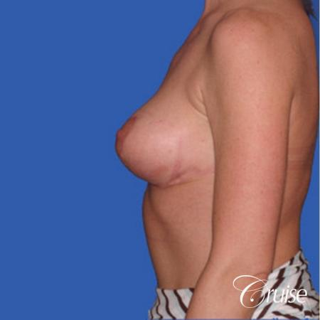 best breast reduction without implants -  After Image 2