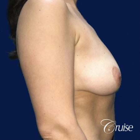 Breast Lift Anchor W/ Silicone Implants On Young Woman - Before Image 2