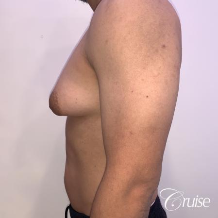 gynecomastia surgery - Before 2