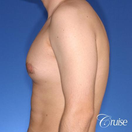 moderate gynecomastia puffy nipple - Before Image 2