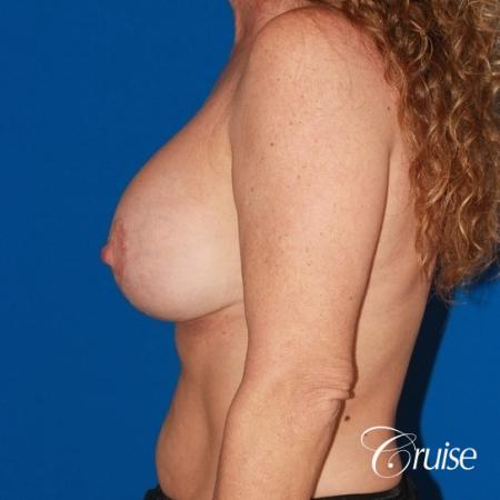 best high profile silicone breast lift 425cc -  After Image 2