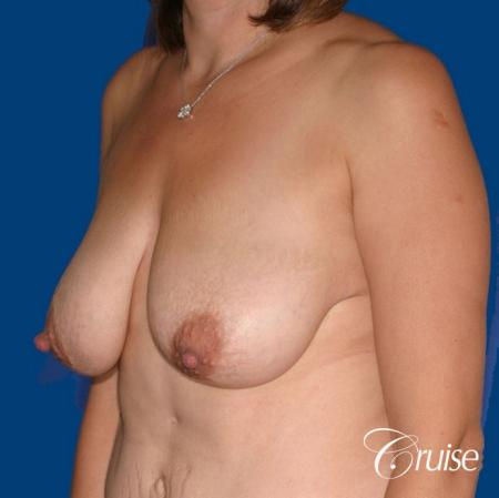 best breast reduction no implants - Before Image 3