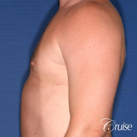 male adult with gynecomastia -  After Image 2