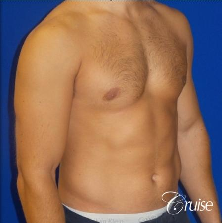 male breast reduction surgery newport beach -  After Image 2
