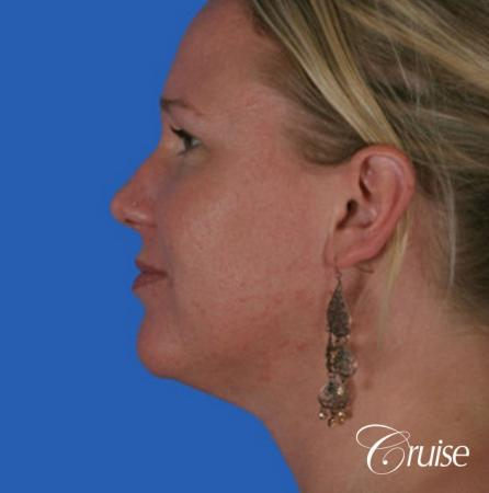 best liposuction neck and jawline for double chin -  After Image 2