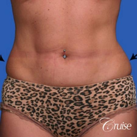 best lipo photos of love handles and stomach - Before Image 1