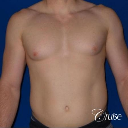 Dr. Cruise gynecomastia surgery photos - Before Image 1