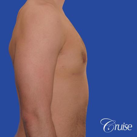 20 year old with moderate gynecomastia - After Image 4