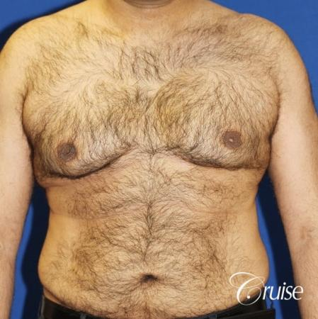 40 year old with severe gynecomastia results - Before Image 1