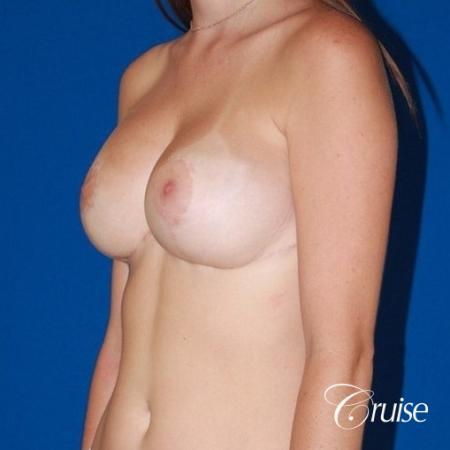best breast lift and reduction with small saline implants -  After Image 3