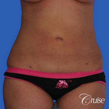 small waist with liposuction abdomen and flanks -  After Image 1