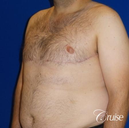 Severe Gynecomastia- Free nipple Graft  - After Image 2
