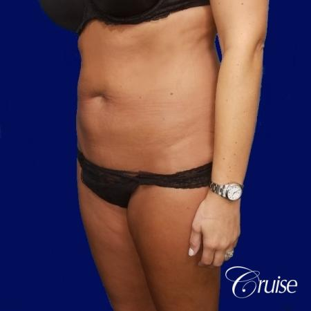 Liposuction Abdomen and Flanks with Midline Contour - Before Image 3