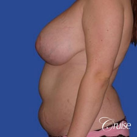 best before and after of liposuction abdomen, flanks, and upper back - Before and After Image 2