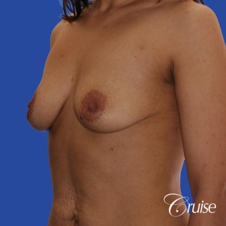 best scars for  breast lift anchor saline in Newport Beach, Orange County - Before Image 3