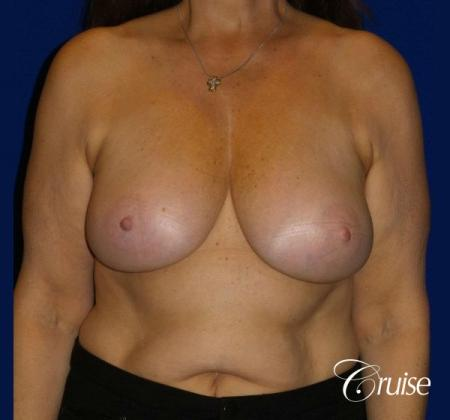 Breast Reduction - No Implants - Before Image