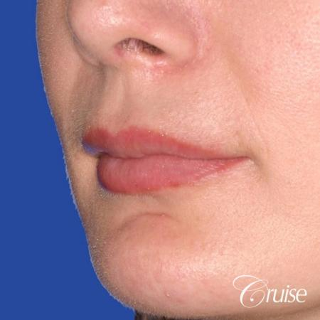 best before and after of lip filler - After Image 2