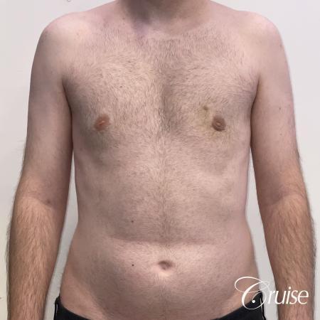 Gynecomastia: Patient 128 - After 1