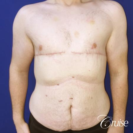 severe gynecomastia -  After Image 1