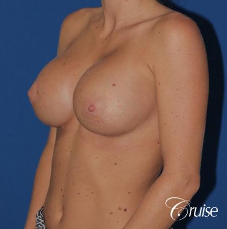 breast reconstruction better cleavage and capsulectomy -  After Image 3