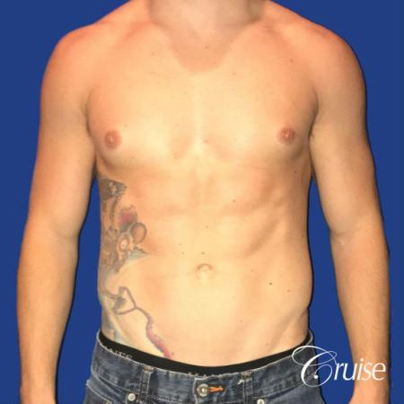 Mild Gynecomastia -Puffy Nipple -Areola Incision - Before Image