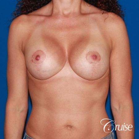 best breast lift revision with high profile silicone 425cc -  After Image 1