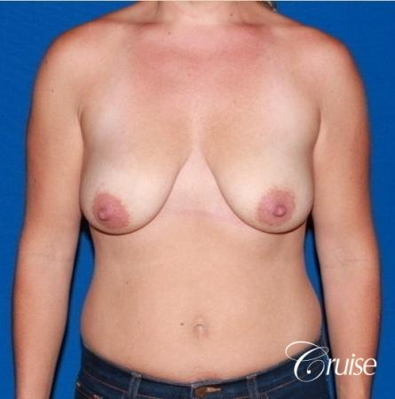 best results for breast lift anchor with saline implants - Before Image 1