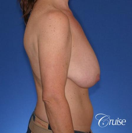 best breast lift anchor with high profile saline implants - Before Image 3