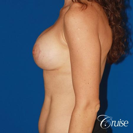 young woman with silicone breast lift anchor -  After Image 2