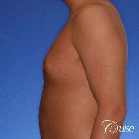 best puffy nipple gynecomastia results with plastic surgeon, Joseph Cruise, M.D. - Before Image 2