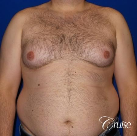 Severe Gynecomastia- Free nipple Graft  - Before Image 1