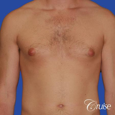 young adult with puffy nipple gets the best results with top gynecomastia surgeon - Before Image 1