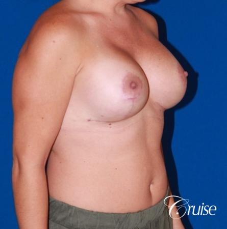 best results for breast lift anchor with saline implants -  After Image 4