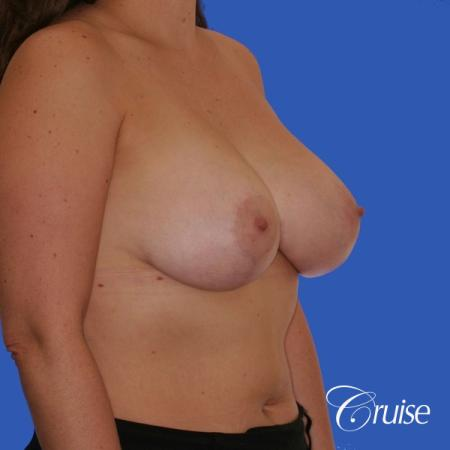 best results for breast lift surgeon in Newport Beach -  After Image 3