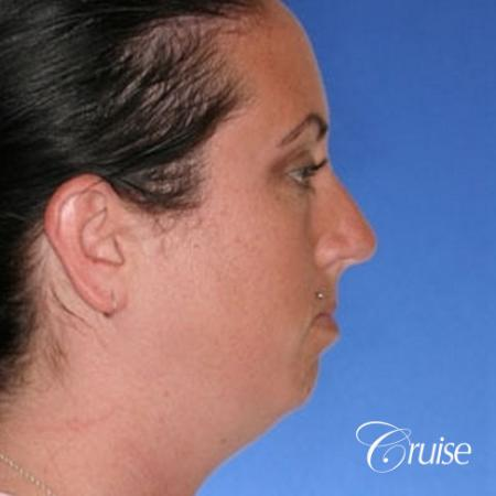 before and after photos of female chin implant - Before Image 4