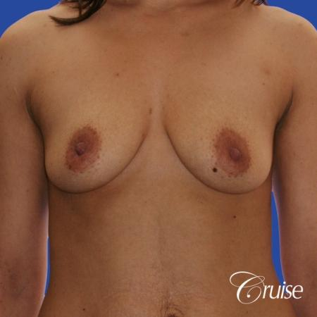 best scars for  breast lift anchor saline in Newport Beach, Orange County - Before Image 1