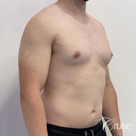 Gynecomastia: Patient 123 - Before 4