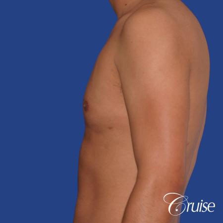 best gynecomastia results with plastic surgeon and specialist -  After Image 2