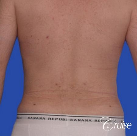 male muffin top liposuction pictures -  After Image 1