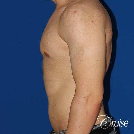 mild-gynecomastia-revision -  After Image 2