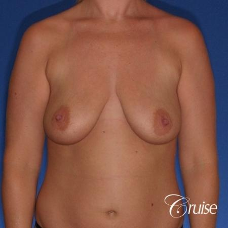 best before and after of breast lift anchor with high profile saline augmentation - Before Image 1