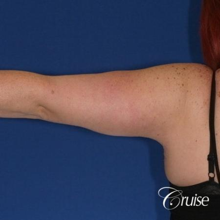 best recovery and photos of arm lift orange county -  After Image 1