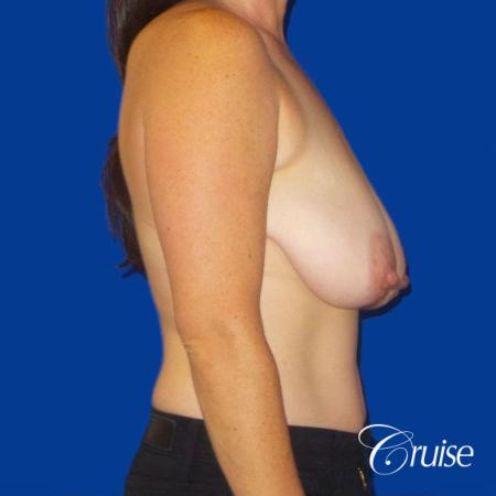 Breast Reduction No Implants - Before Image 3