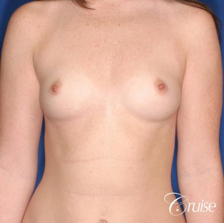 Breast Augmentation: Patient 44 - Before Image 1