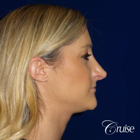 Best Rhinoplasty results Newport Beach CA - Before Image 2