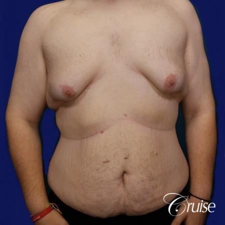 Severe Gynecomastia- Free nipple Graft - Before Image 1