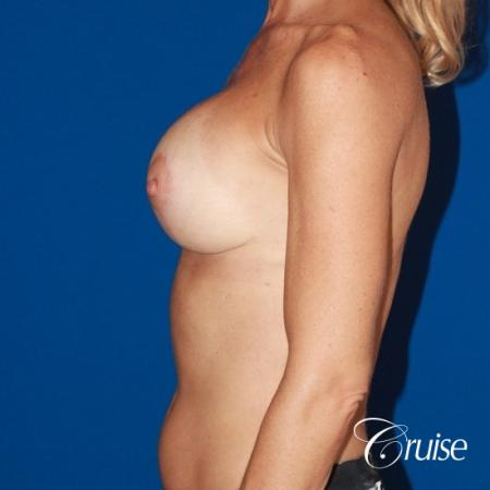 best breast lift results with high profile 375cc implants -  After Image 2