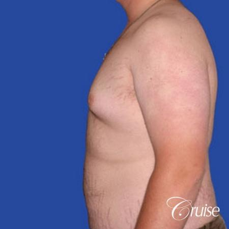 weight loss patient with gynecomastia - Before Image 2