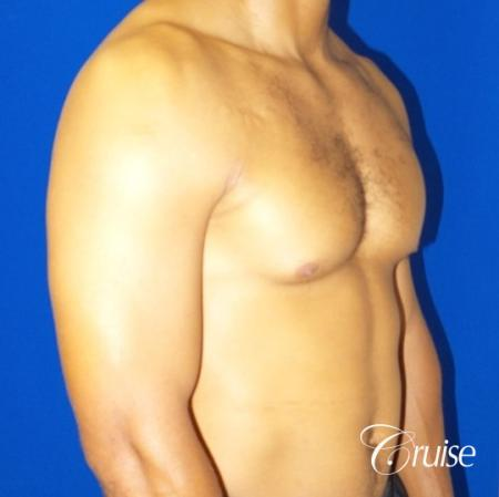 gynecomastia caused by testosterone - Before Image 2